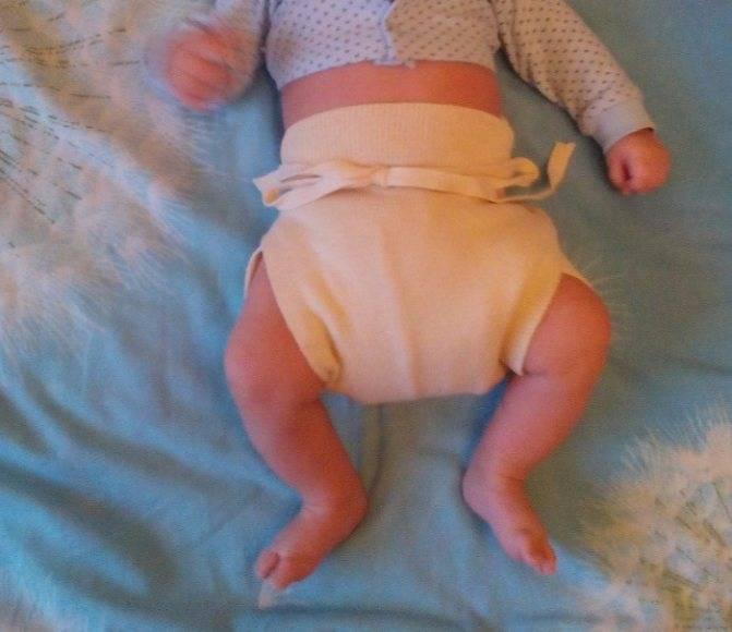 Основные техники пеленания при дисплазии тазобедренных суставов у новорожденных