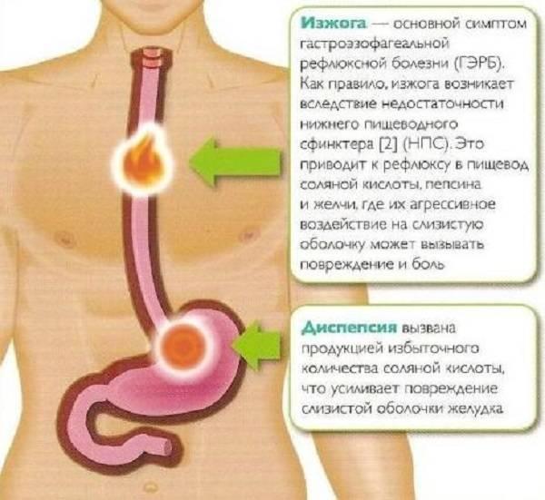 Гастроэзофагеальная рефлюксная болезнь: новый подход к причинам и лечению