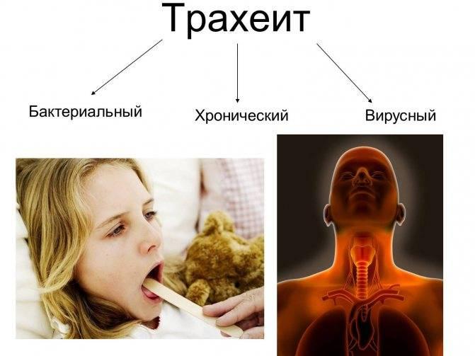 Диагностика и лечение трахеита (александров) | парацельс