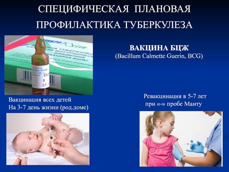 Какие последствия и осложнения могут быть после прививки бцж у ребенка