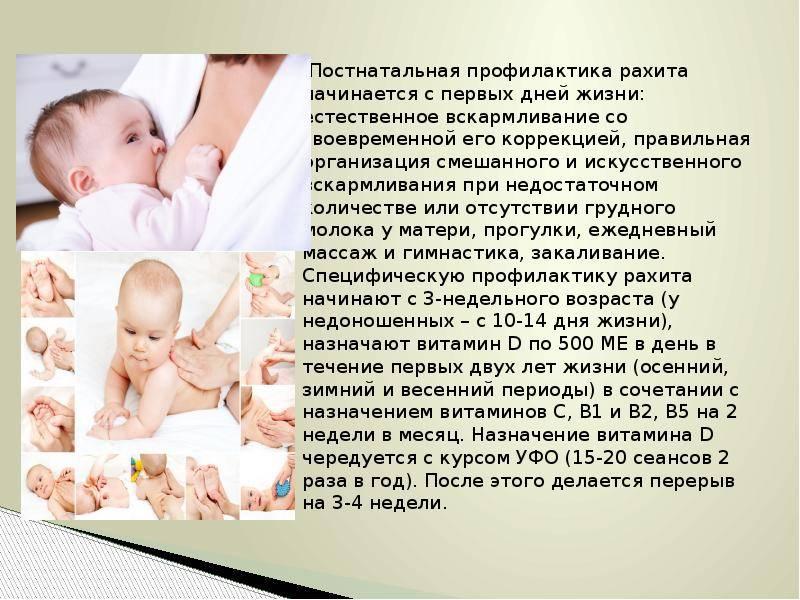 Рахит – признаки и симптомы, лечение, профилактика - сибирский медицинский портал