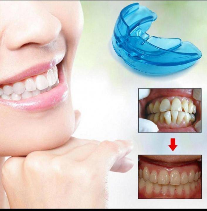 Пластинки для выравнивания зубов у детей: фото, установка, другие конструкции