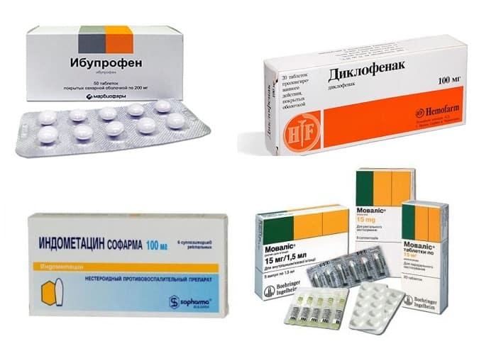Нестероидные противовоспалительные препараты и боль в спине