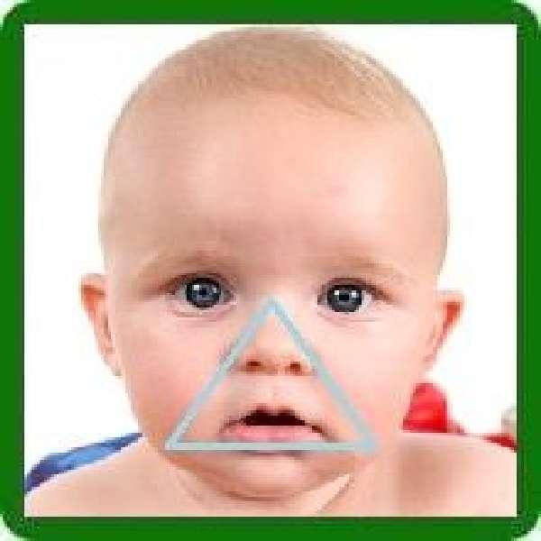 Коррекция носогубных складок на лице