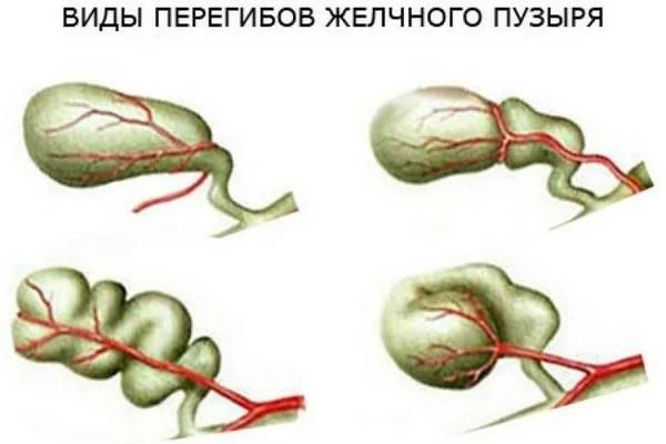 Искусство диетотерапии при заболеваниях желчевыводящих путей