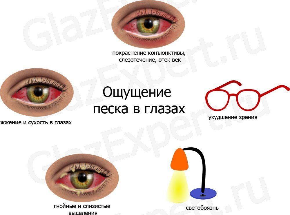 Повышенное глазное давление: причины, симптомы, лечение и профилактика
