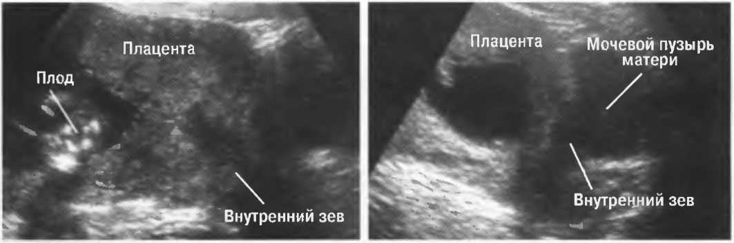Бронхиальная астма и беременность: особенности подхода