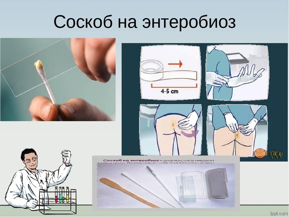 Исследования соскоба на энтеробиоз (яйца остриц)