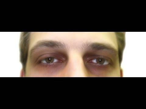 12 частых причин появления синяков под глазами у ребёнка