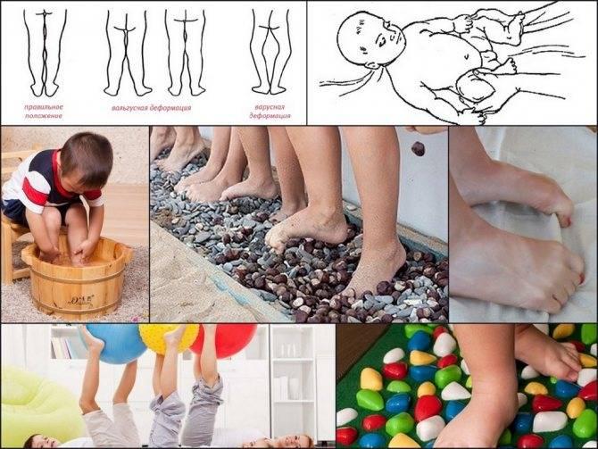 Эффективные упражнения при вальгусной деформации стопы у детей