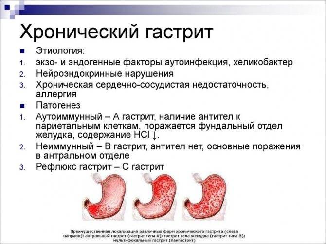 Хронический гастрит у детей - альтамед+