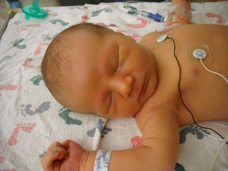Желтуха у новорожденных – физиологическая и патологическая, симптомы и лечение — клиника isida киев, украина