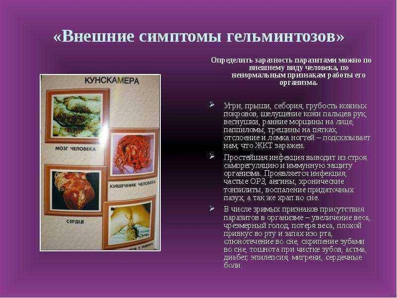 Ленточные черви, причины, симптомы и лечение!