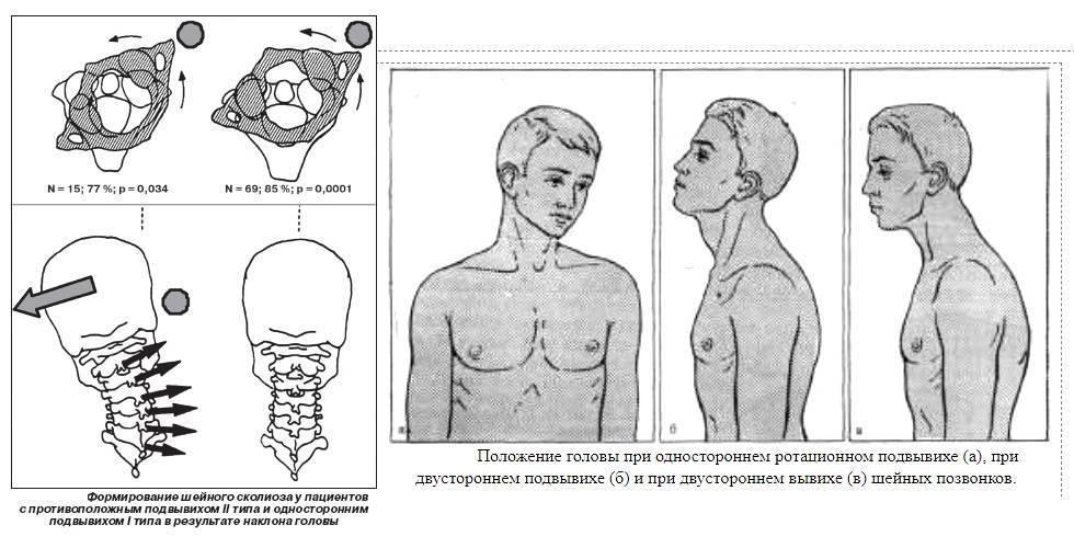 Вывих шейного позвонка у ребенка - симптомы и лечение