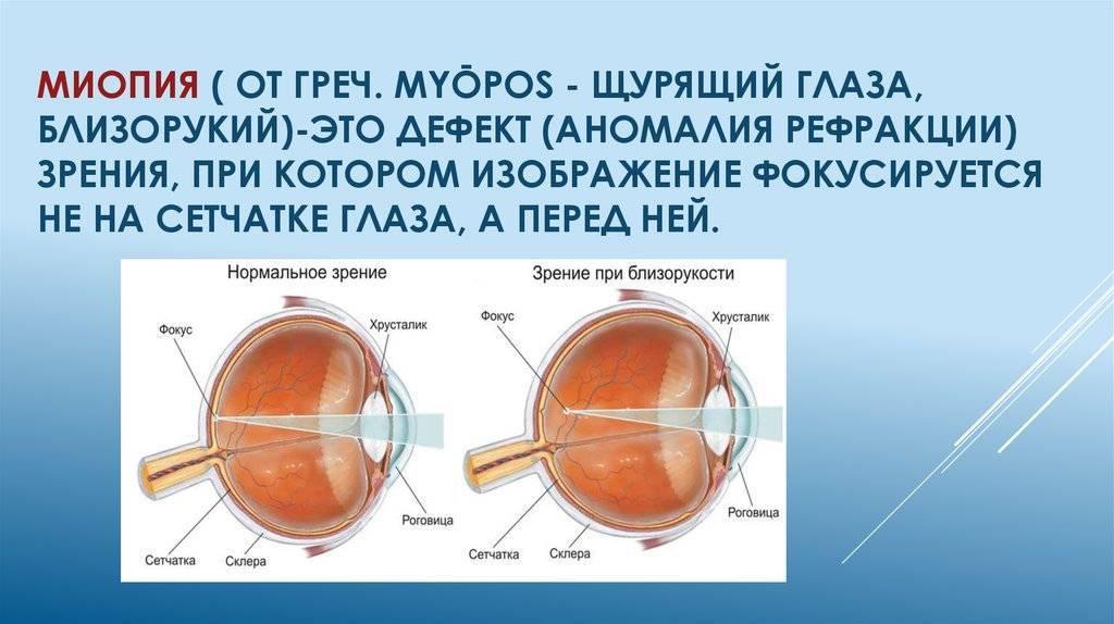 Капли для лечения близорукости у детей - энциклопедия ochkov.net