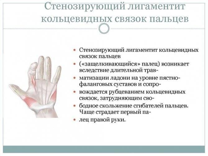 Облитерирующий эндартериит - лечение в инновационном сосудистом центре: заболевание сосудов нижних конечностей, симптомы и причины (фото) — исц