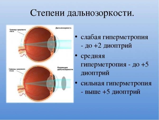 Близорукость (миопия) слабой, средней, высокой степени: причины и лечение.