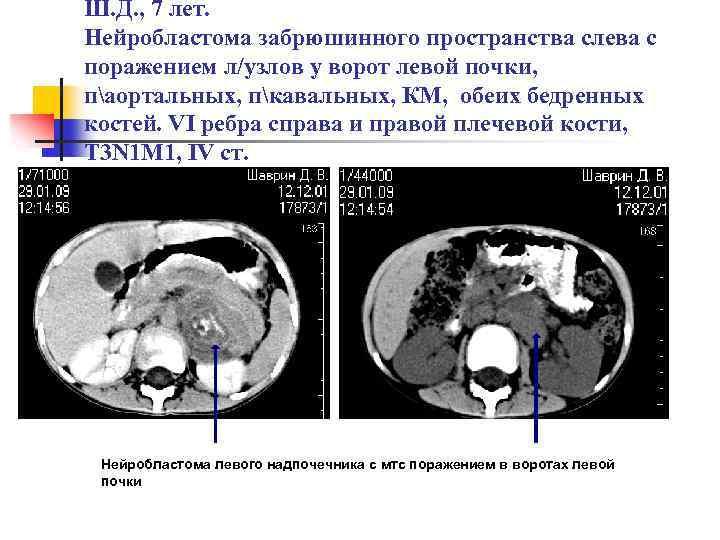 Нейробластома — википедия. что такое нейробластома