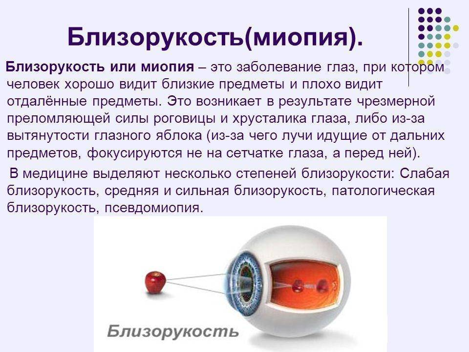 Дальнозоркость: причины, симптомы, лечение и профилактика - энциклопедия ochkov.net