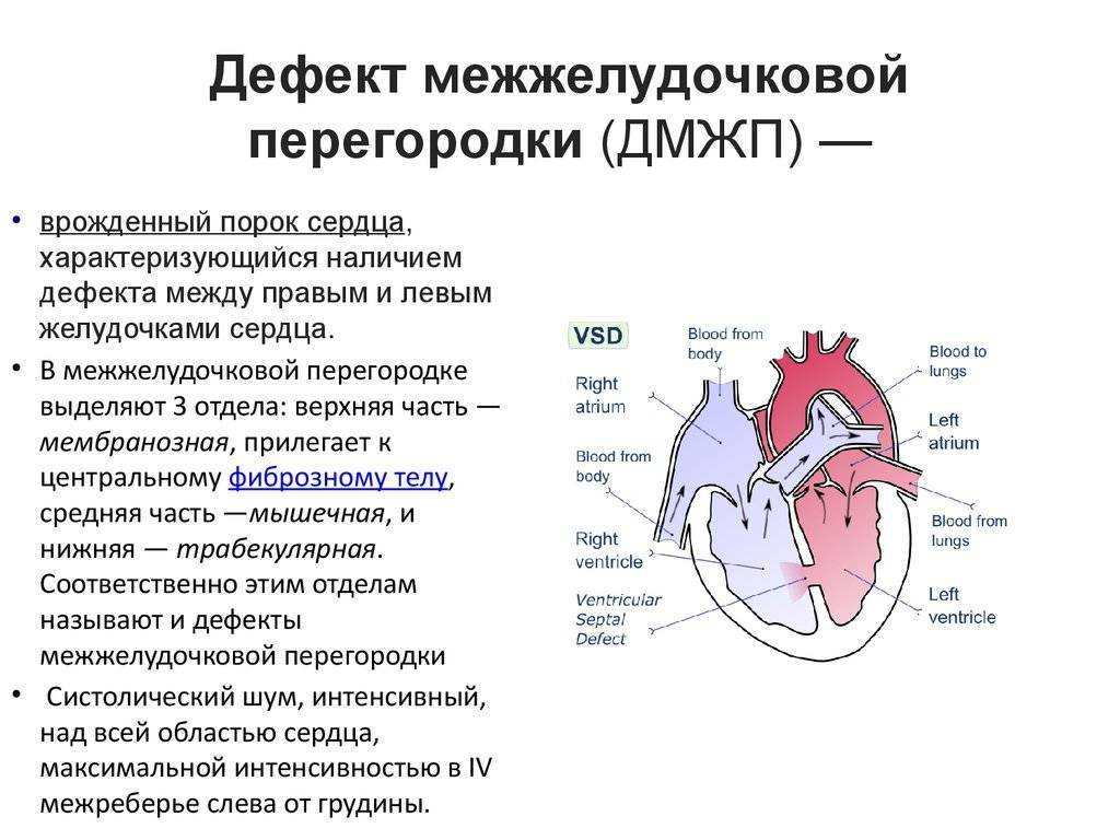 ДМПП сердца у детей (дефект межпредсердной перегородки у новорожденных): симптомы и лечение