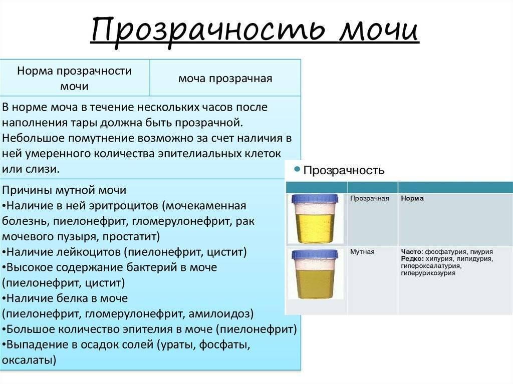 Кровь в моче у детей: причины крови в моче у детей, консультация уролога в москве