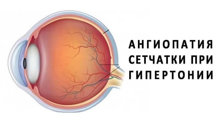 Ангиопатия сетчатки глаза: лечение