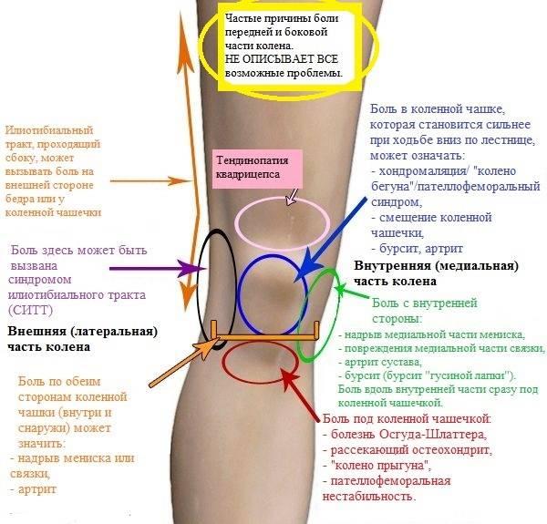 Локтевой бурсит - лечение, симптомы, причины, диагностика | центр дикуля