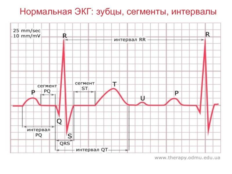 Тредмил-тест: проверка сердца под нагрузкой