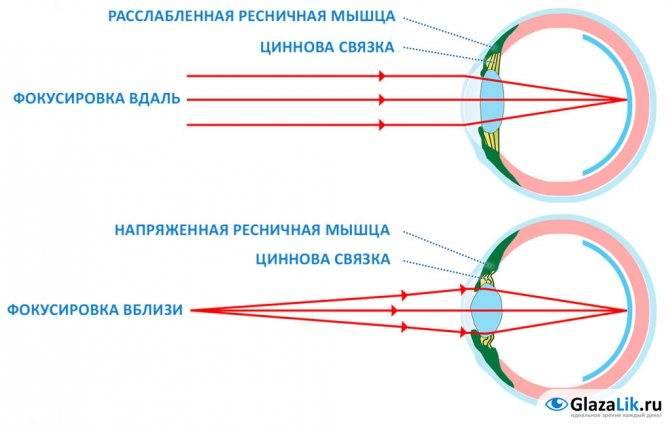 Аккомодационная и анатомическая близорукость: диагностика - энциклопедия ochkov.net