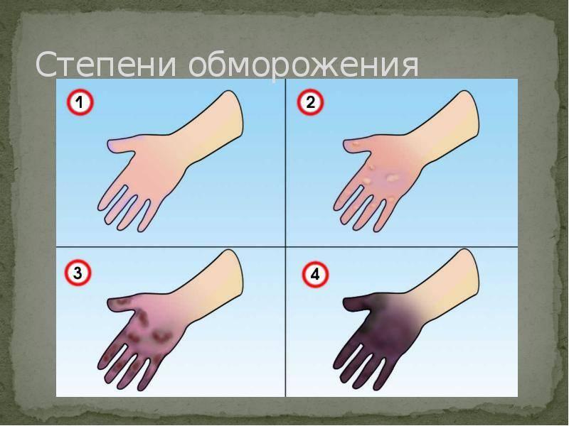 Онемение рук, ног, пальцев: причины, симптомы, диагностика, лечение