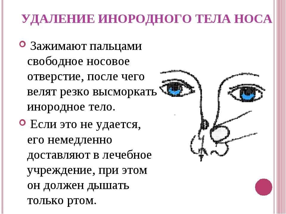 Инородные тела в носу у детей - лор клиника №1