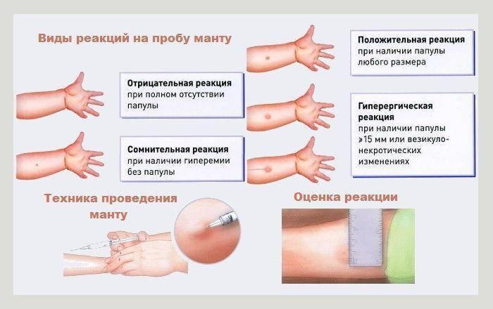 Как отказаться от прививок, если решение принято? - блог напоправку