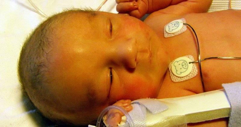 Как лечится косоглазие у младенцев?