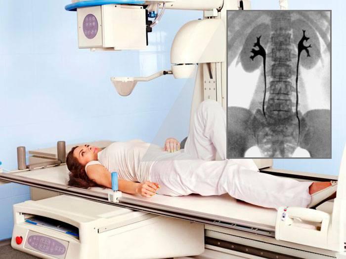 Цистоскопия - обследование мочевого пузыря
