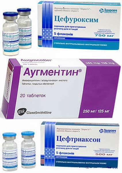 Антибиотики при отите у детей - какие препараты при заболевании лучше?