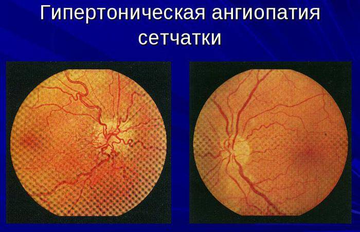 Осложненная катаракта - что это такое? лечение осложненной катаракты в клинике fedorovmedcenter.ru