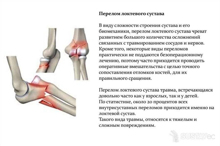 Переломы нижней челюсти у детей: причины, симптомы, диагностика, лечение   компетентно о здоровье на ilive