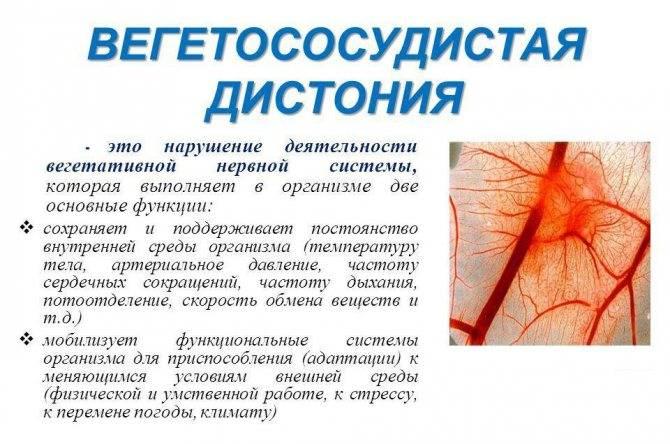 Синдром вегетативной дистонии - лечение, симптомы, причины заболевания, диагностика и профилактика