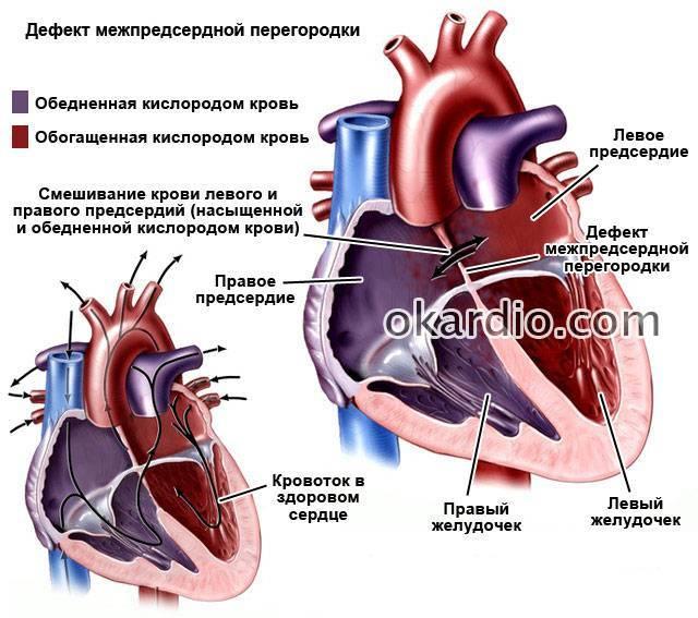 Пороки сердца у детей: аневризма межпредсердной перегородки — медицинский центр в махачкале «целитель»