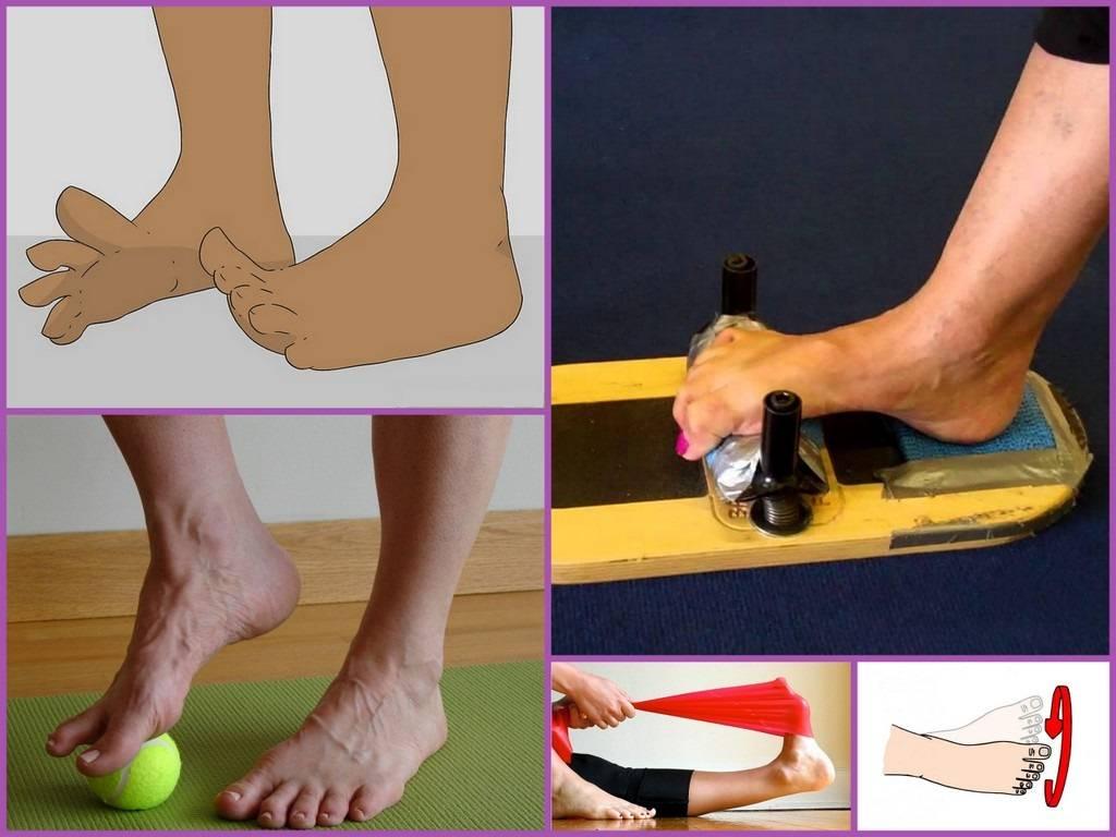 Вальгусная деформация стоп у детей: лечебный массаж