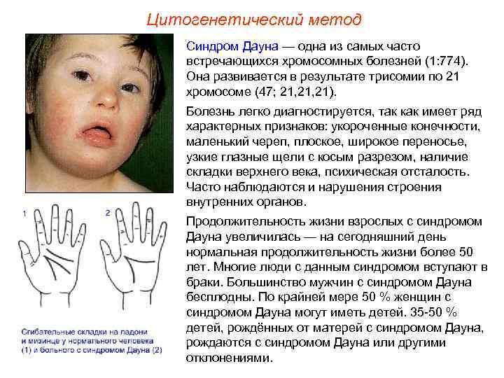 Остановка развития зародыша