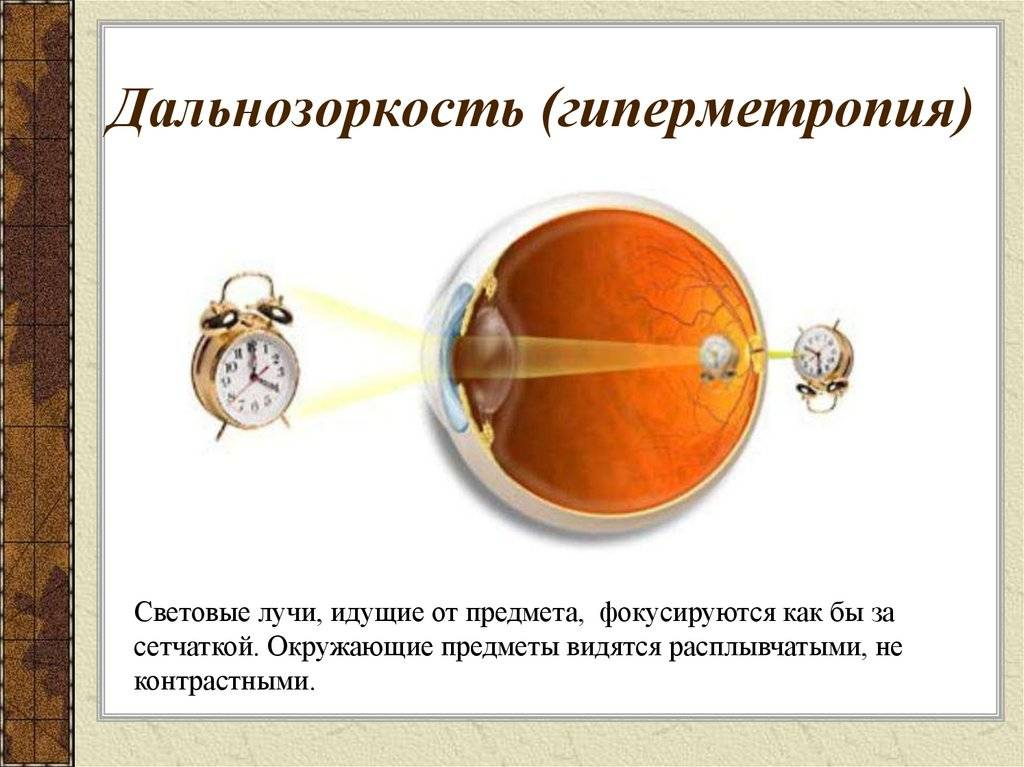 Лечение астигматизма и дальнозоркости у детей - энциклопедия ochkov.net