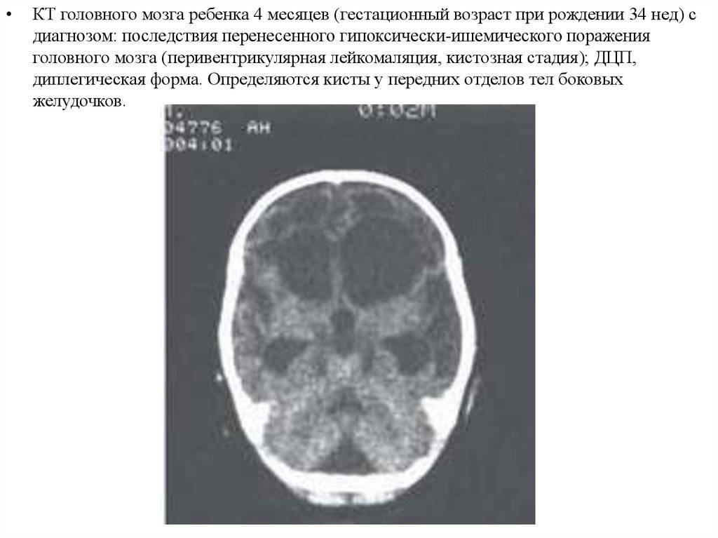 Диагностика и лечение ишемии головного мозга (сергиев посад)