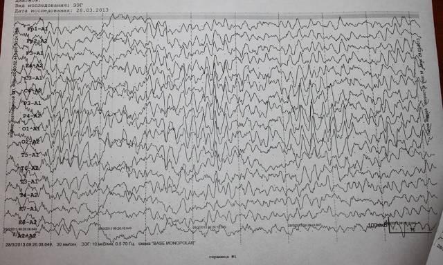 Часто задаваемые вопросы про ээг / видео-эг мониторинг — центр эпилептологии и неврологии им. а.а.казаряна
