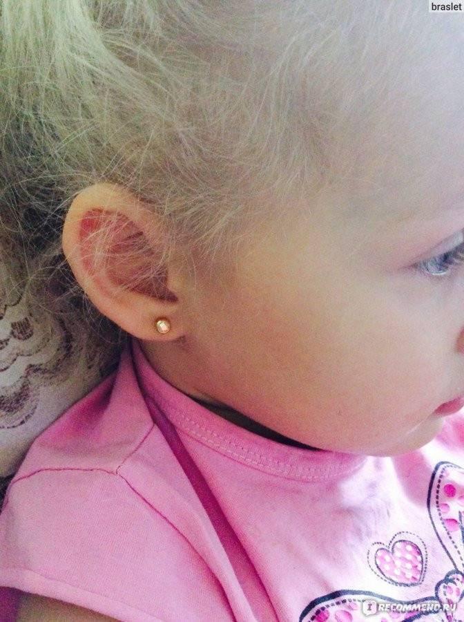 Медики не рекомендуют прокалывать уши до 15 лет: как правильно делать проколы, какой металл использовать