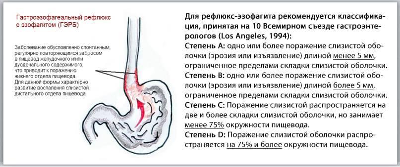 ᐈ диагностика и лечение гастроэзофагеальной рефлюксной болезни (гэрб)