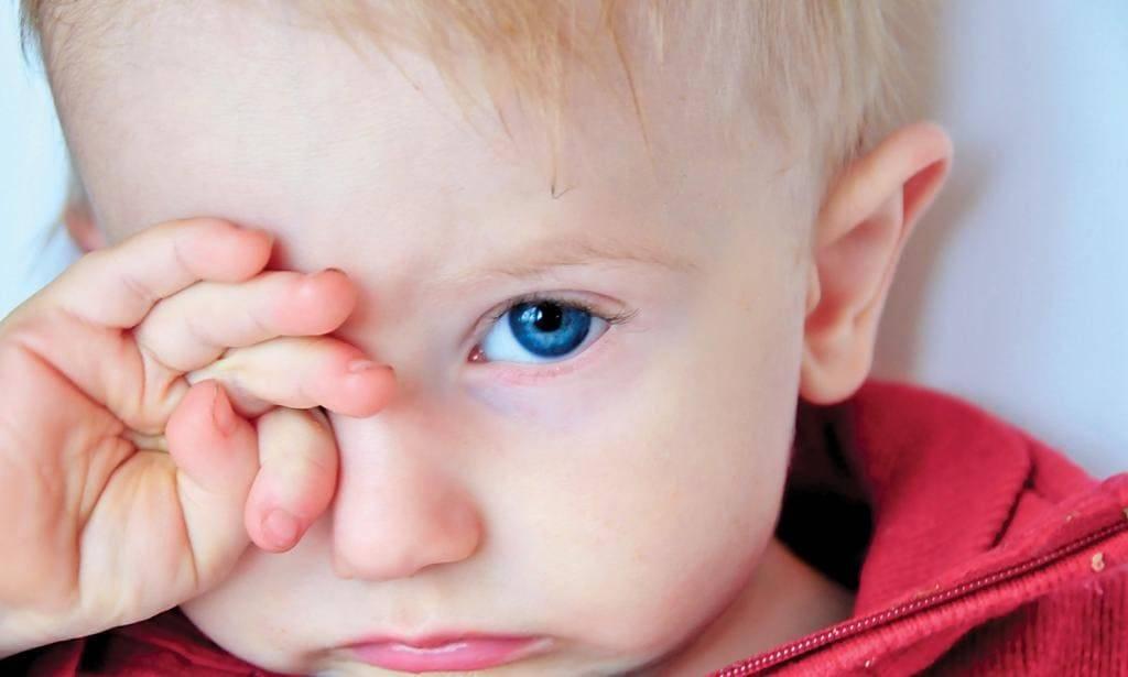 Красные глаза у ребенка - причины и лечение покраснения