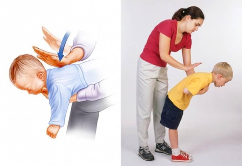 Что делать если ребенок проглотил косточку от сливы, как помочь