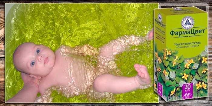 Купание новорожденного в ромашке