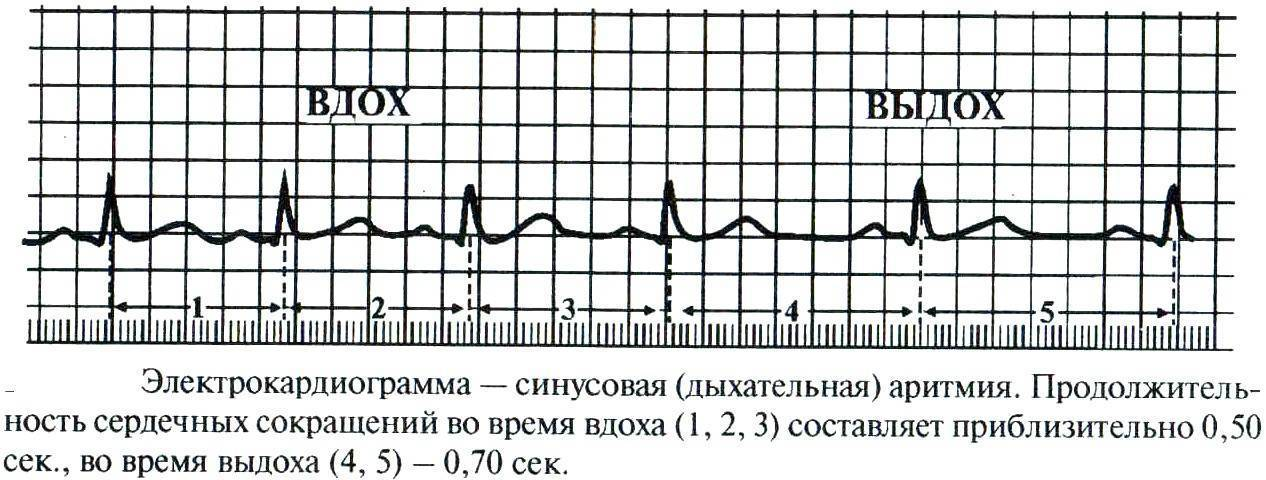 Фибрилляция предсердий: диагностика и лечение мерцательной аритмии - сибирский медицинский портал